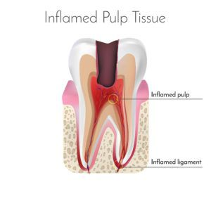 Computerized image of a tooth with infected pulp
