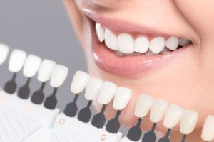 Teeth whitening shade guide being used to match the color of teeth