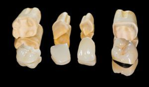 Dental restorations lying next to each other on a black background