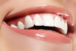 Perfect white smile