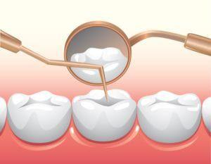 Dental tools inside mouth checking teeth