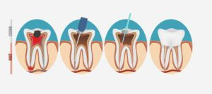 Computerized image showing the sequence of a root canal
