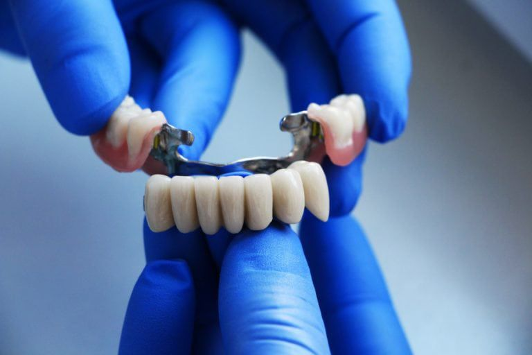 Hands holding a dental bridge