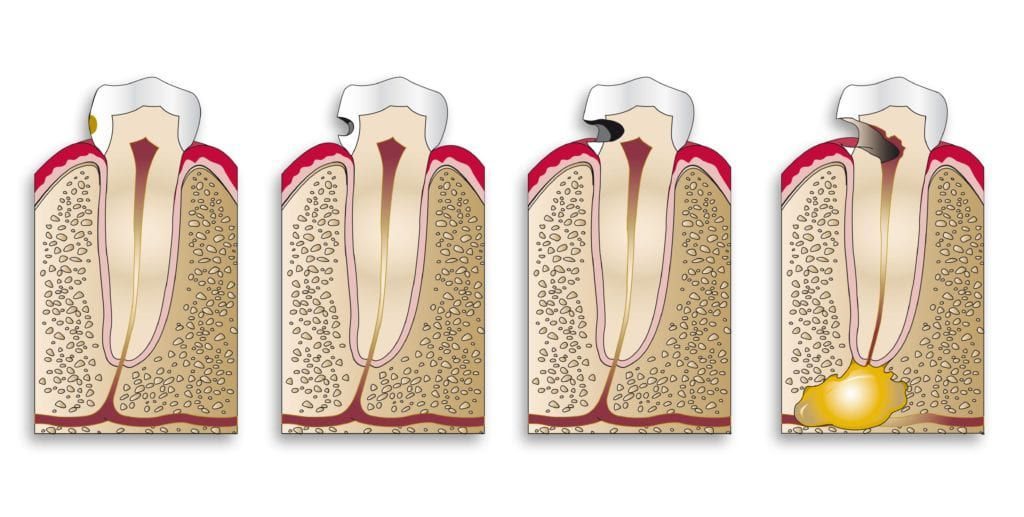 Diagram showing cavity progression