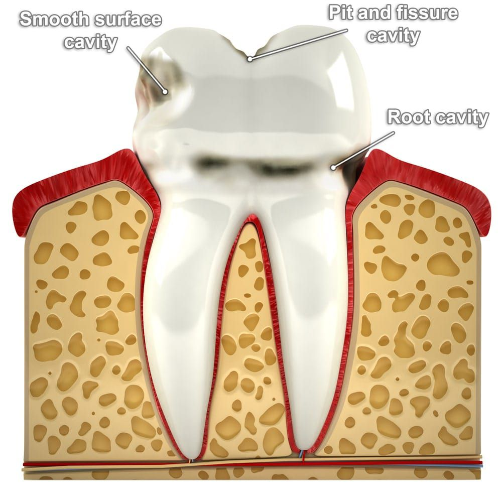 Diagram showing the different types of cavities