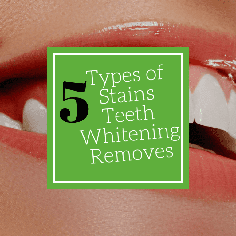 "Title banner for ""5 types of stains teeth whitening removes"""