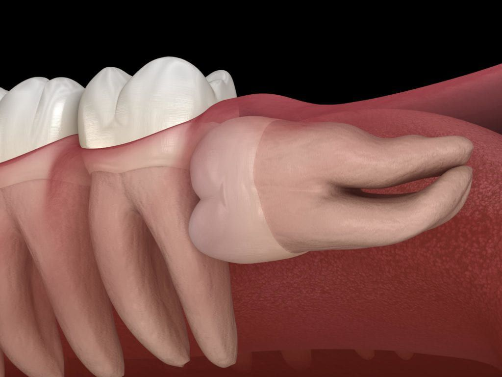 Horizontally impacted wisdom tooth