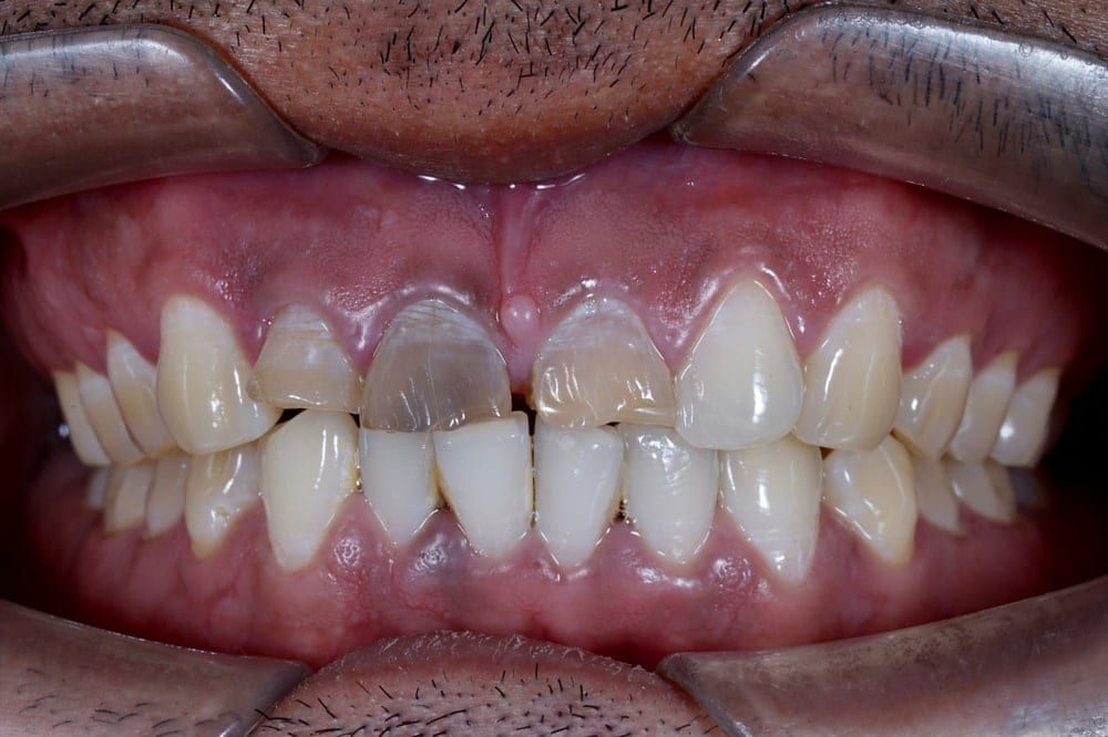 Discolored tooth