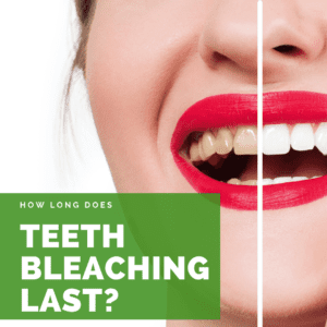 How Long Does Teeth Bleaching Last?