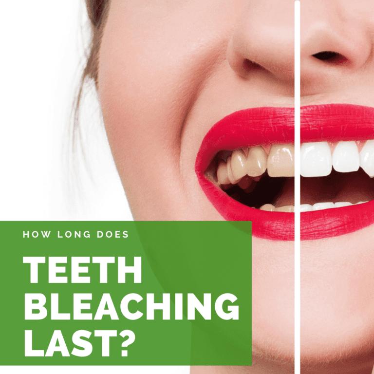 How Long Does Teeth Bleaching Last?