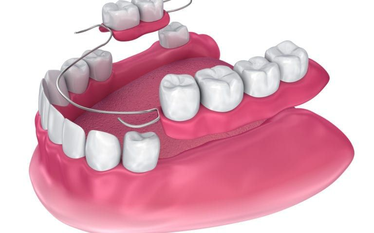 Rendering Of Partial Denture