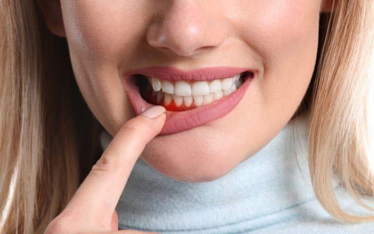 Woman pulling down lip to reveal gum disease